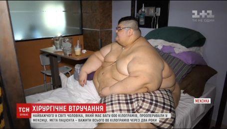 В Мексике прооперировали мужчину, который весил 600 килограмм