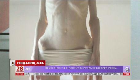 Ложка вівсянки в день: як анорексія зруйнувала життя 27-річної Олександри