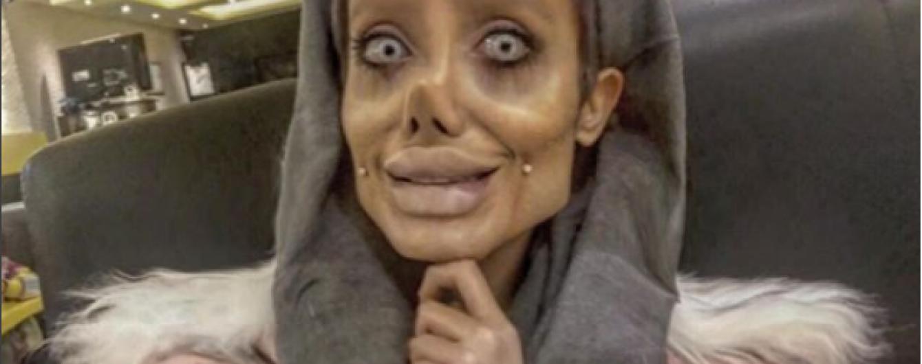 """Іранська """"Джолі"""": в Мережі зацікавилися правомірністю дій пластичних хірургів"""