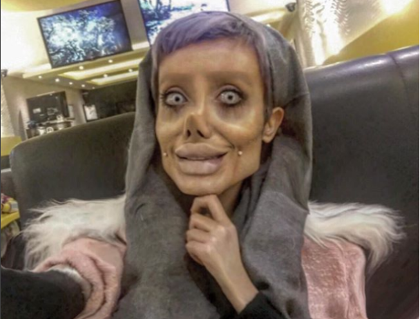 Выглядеть, как труп: 19-летняя девушка пережила 50 операций, чтобы быть похожей на Анжелину Джоли