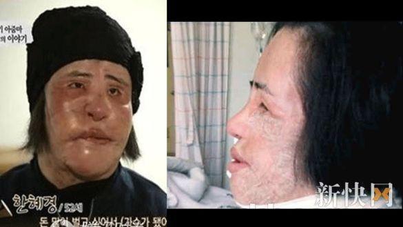 Пластична трагедія кореянки