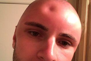 Сеть покорил мужчина, оставивший углубление в своей голове после сильного солнечного ожога
