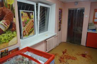 Численні різані рани, забої тіла і струс мозку. Поліція оприлюднила деталі нападу на продавчиню в Києві