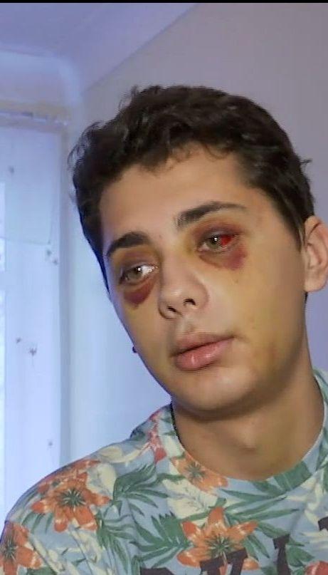 У Сумах охоронці нічного клубу побили клієнта