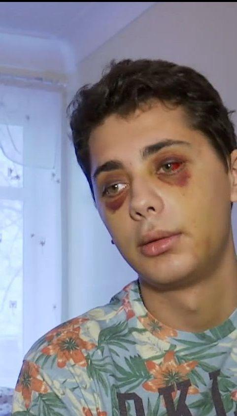 В Сумах охранники ночного клуба избили клиента