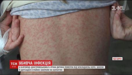 На Одещині від кору померла 5-річна дитина