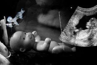 Недбалість лікарів чи куріння. На Хмельниччині у новорічну ніч загадково померло немовля в утробі породіллі
