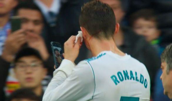 Кріштіану Роналду вматчі розрізали обличчя і він відразу схопив iPhone
