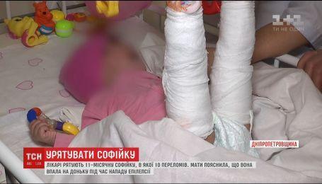 В Днепре 10-месячная девочка получила десять переломов через якобы неосторожности мамы
