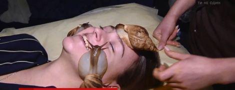Равлики на обличчі та болючі уколи: українки в гонитві за вічною молодістю йдуть на вигадливі процедури