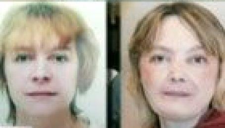Перша в світі пересадка обличчя