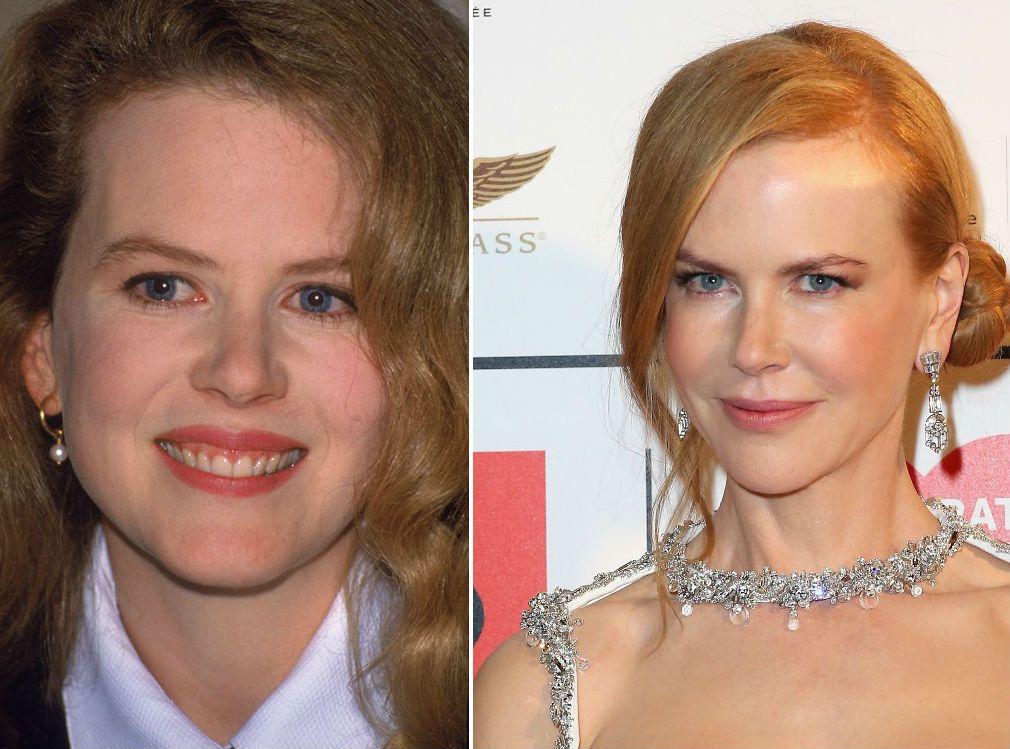 Нарощенная челка фото до и после этих