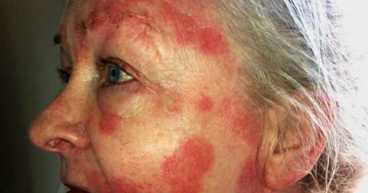 Карен Муні стала жертвою поганої косметики @ Daily News