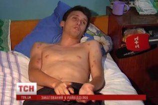 19-летний парень рассказал, как его пытали днепропетровские милиционеры