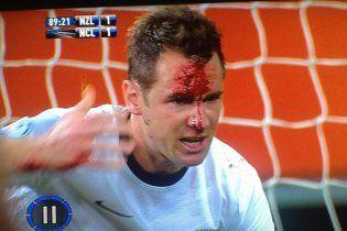 Форварду збірної Нової Зеландії до крові розбили лоба у матчі відбору на ЧС-2014
