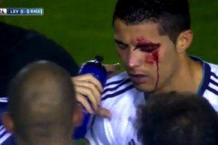 Кровавые лица: как футболисты получили болезненные травмы (видео)