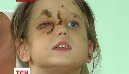 В Артемівську пітбультер'єр роздер п'ятирічну дівчину