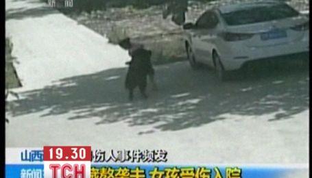 3-річна дівчинка вижила після нападу мастифа, який шматував її кілька хвилин