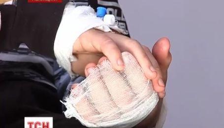 На Рівненщині гадюка вкусила 12-річного школяра
