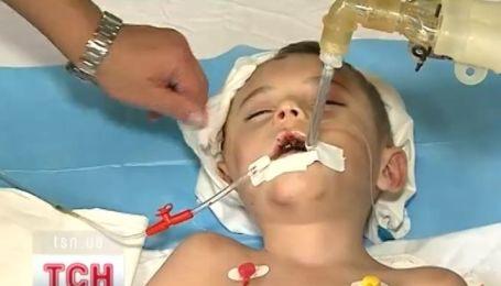 6-летнего мальчика отчим отправил в реанимацию
