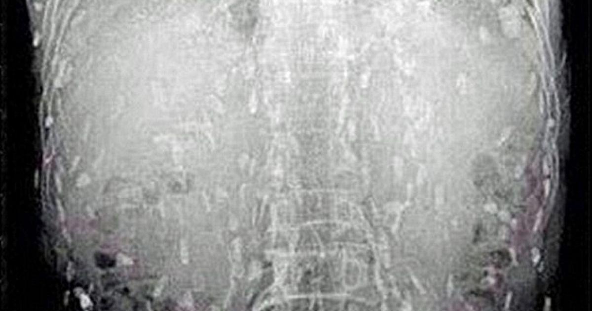 Рентген-знімки жахнули любителя суші @ dailymail.co.uk