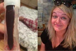 Британка виявила в своєму носі 7-сантиметрову п'явку