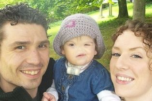 В Великобритании девочка родилась без носа