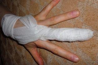 """Российские актеры сломали палец женщине после вопроса к Говорухину, почему он """"подписант"""""""