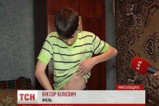 Девятиклассник на Николаевщине утверждает, что учитель географии сломал ему ребро