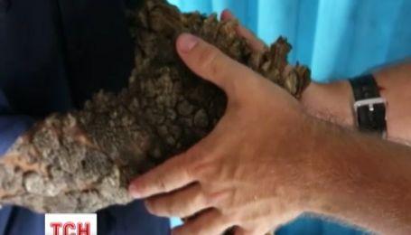 Журналісти 1+1 знайшли унікальну людину-дерево