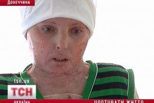 У Донецьку з того світу витягли жінку з 97% опіків тіла