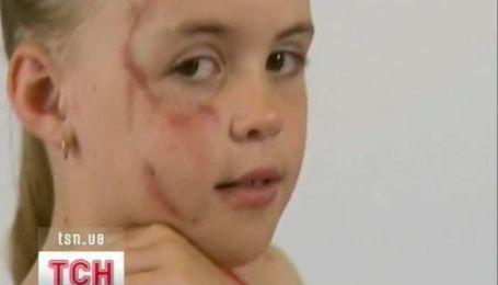 Новогодний подарок стал ужасом для семилетней девочки в Австралии