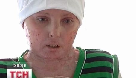 Донецкие врачи спасли 35-летнюю женщину, которая чуть не сгорела в собственном душе