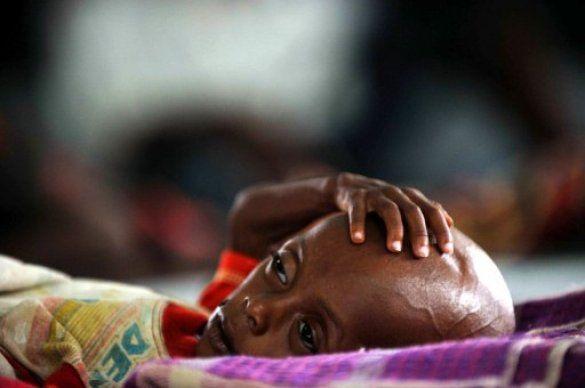 Голод в Сомалі_5