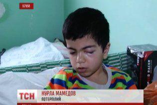 Новорічні салюти все частіше залишають маленьких українців без очей і з важкими травмами