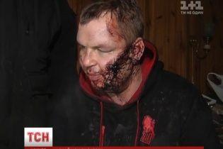 Появилось первое видео с едва живым после пыток Дмитрием Булатовым