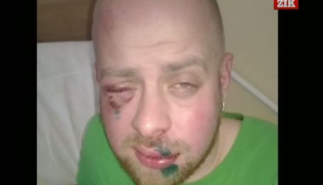 Во Львове неизвестные жестоко избили оператора телеканала ZIK