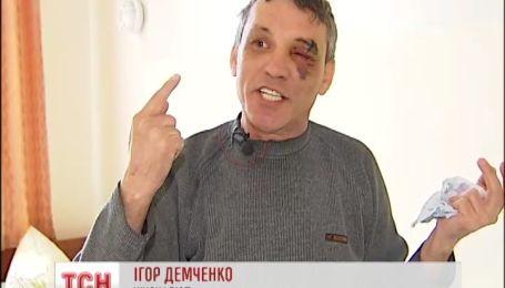 Правоохранители опровергают обвинения в обстреле журналистов