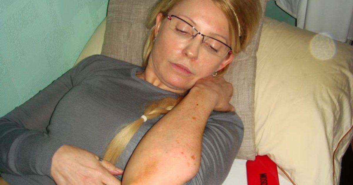 Карпачова продемонструвала фото гематом Юлії Тимошенко на зустрічі із західними дипломатами @ facebook.com/Портніков