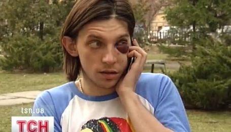 """Репер Ларсон разбил лицо парню, который тыкал ему """"фак"""""""