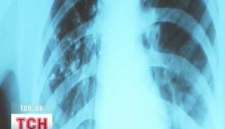 Ежечасно четверо украинцев умирают от туберкулеза