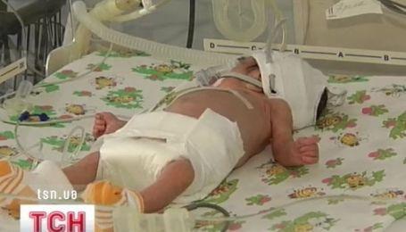 Более 15 миллионов детей ежегодно рождаются недоношенными