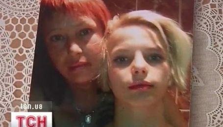 Девушке из Николаева, которую изнасиловали и подожгли, уже лучше
