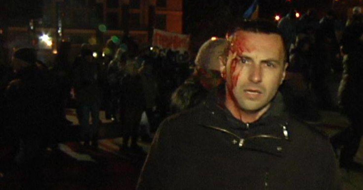 Раненые истекают кровью @ vn.cominformua.com