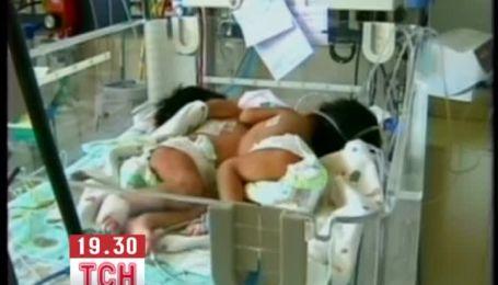 В Боливии впервые успешно разделили сиамских близнецов