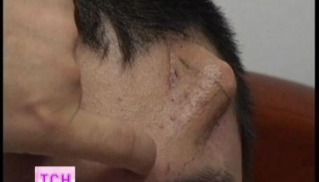 Китайські медики виростили новий ніс пацієнта у нього ж на лобі