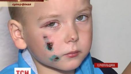 На Тернопольщине петарда чуть не оставила без глаза и руки 3-летнего мальчика