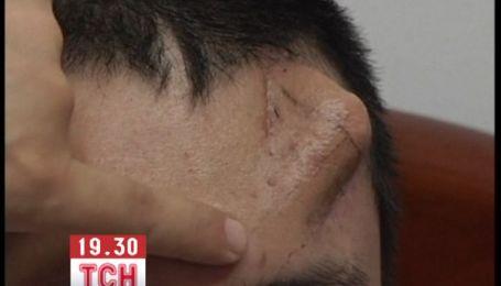 Хірурги в Китаї виростили чоловіку новий ніс у нього на лобі