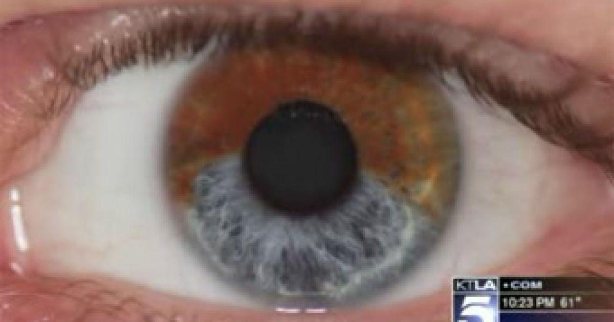 Изменить цвет глаз на голубой можно будет за 5 тысяч