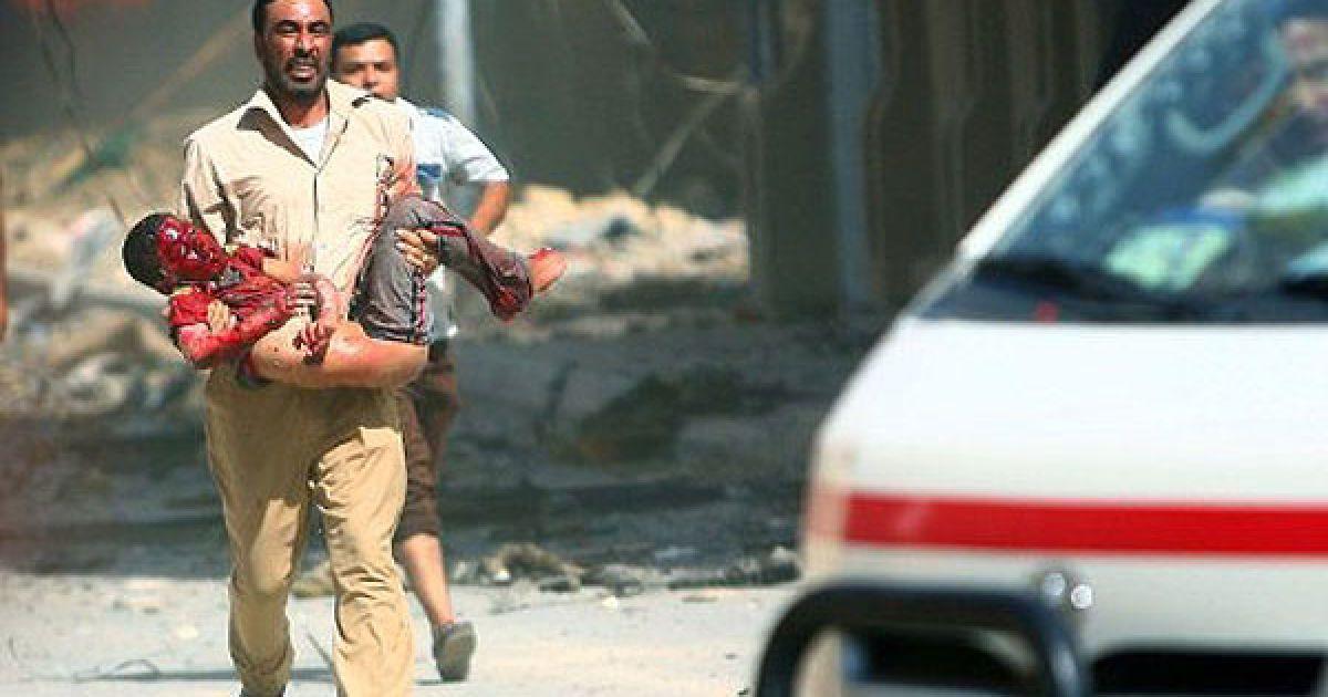 Ірак, Кербела. Чоловік несе на руках дитину, поранену під час вибуху в місті Кербела. В результаті вибуху у державному закладі, загинули щонайменше дев'ять осіб. @ AFP